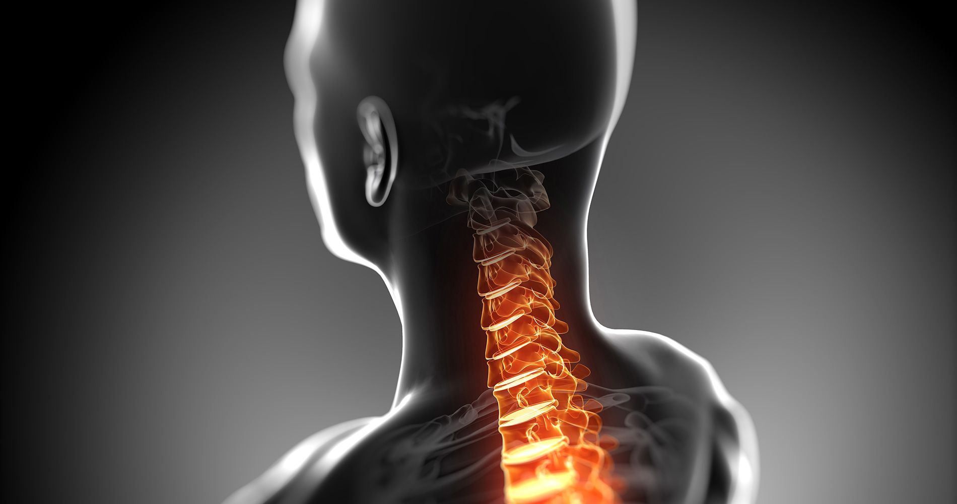 spine-pain